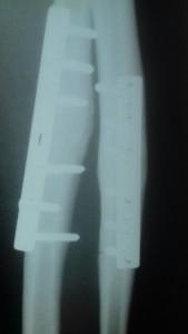 Raio X do braço de Rafael Marcelino